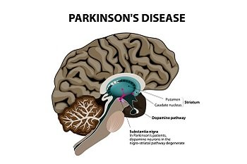 Assisted Living for Parkinson's Disease Patients